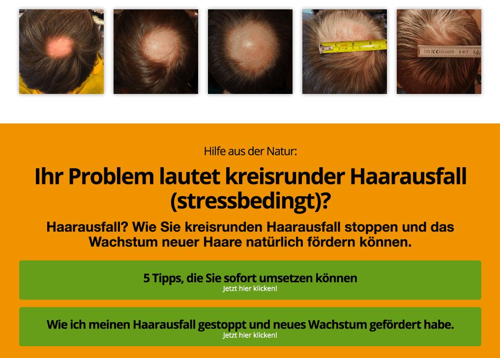 Ihr Problem lautet kreisrunder Haarausfall (stressbedingt)?